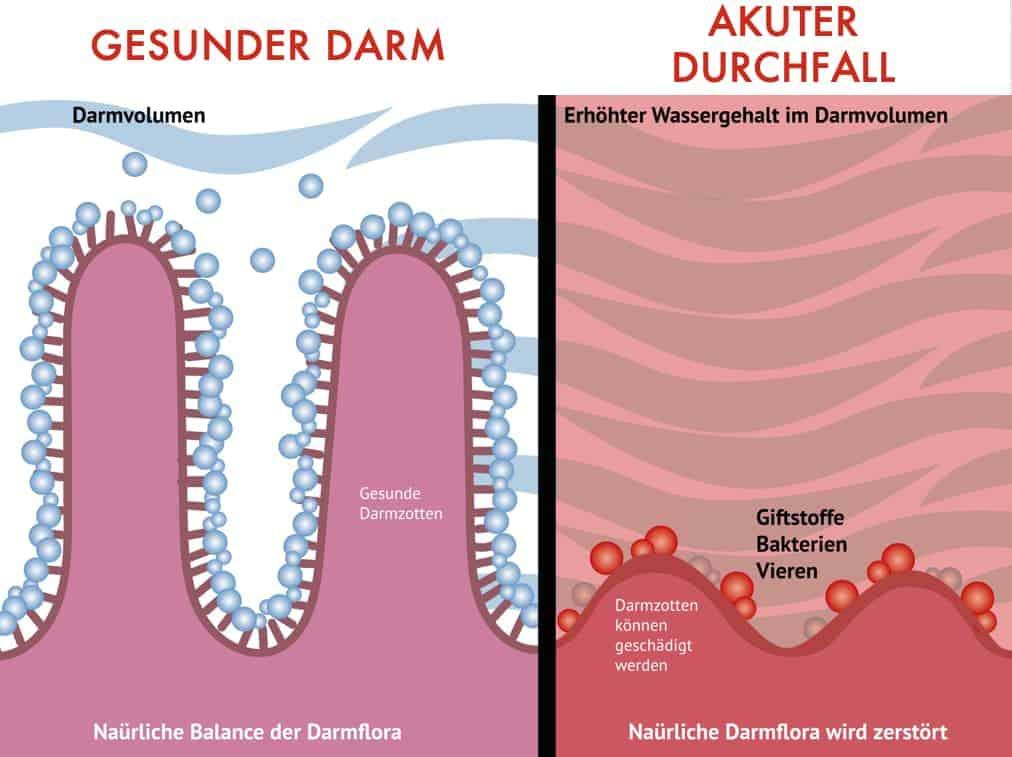 Infografik gesunder Darm - Vergleich akuter Durchfall